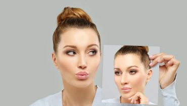 Useful Tips of 3 Life-saving About Rhinoplasty